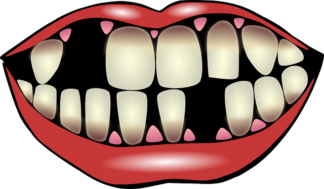 a mouth with broken teeth and blooded gums showing how scurvy look like